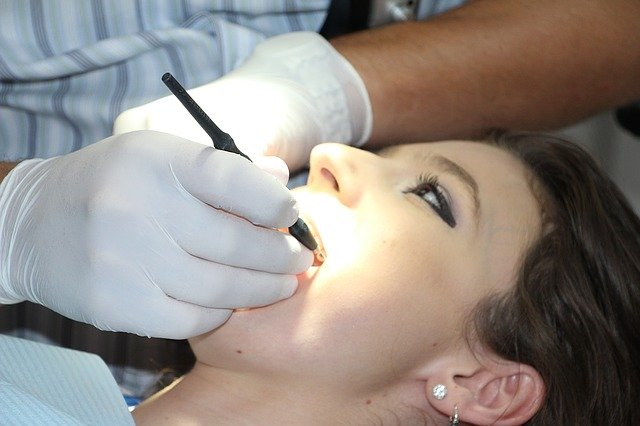 Estrarre-denti-del-giudizio