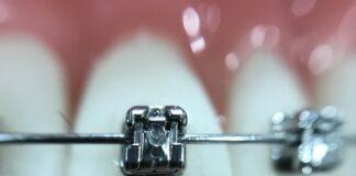 Apparecchio-denti
